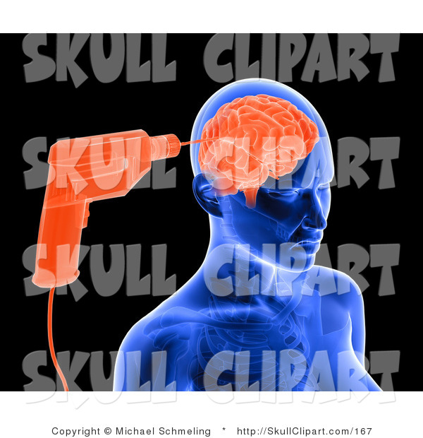 Clip Art of a Blue X-ray of a Drill Drilling into a Woman's Brain